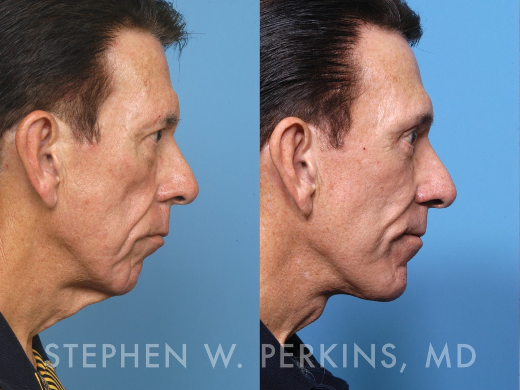 Indianapolis Plastic Surgeons | Dr. Stephen Perkins, MD 07_TL2