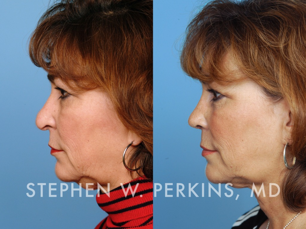 Indianapolis Plastic Surgeons | Dr. Stephen Perkins, MD 08