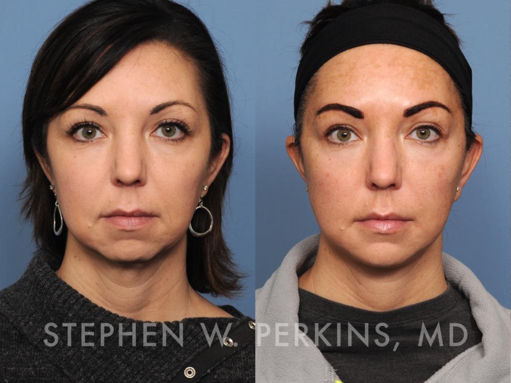 Indianapolis Plastic Surgeons | Dr. Stephen Perkins, MD 08_HM2