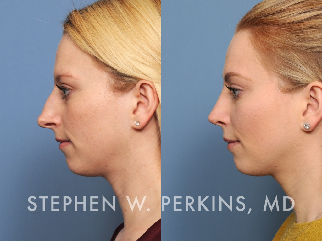 Indianapolis Plastic Surgeons | Dr. Stephen Perkins, MD 09