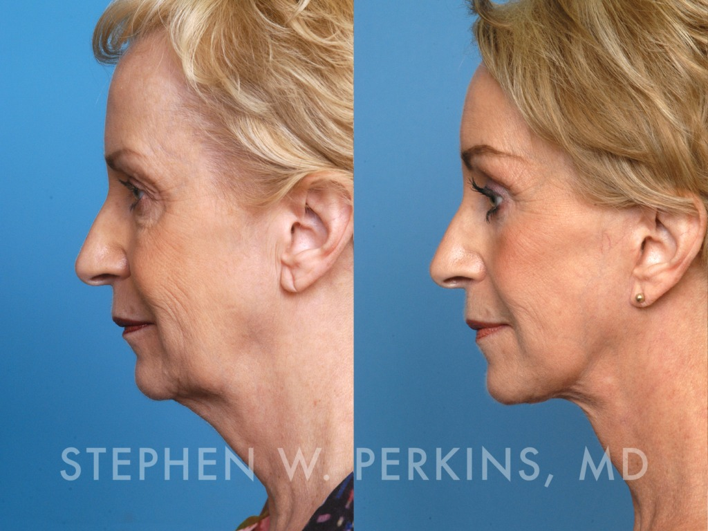 Indianapolis Plastic Surgeons | Dr. Stephen Perkins, MD 09_MN2