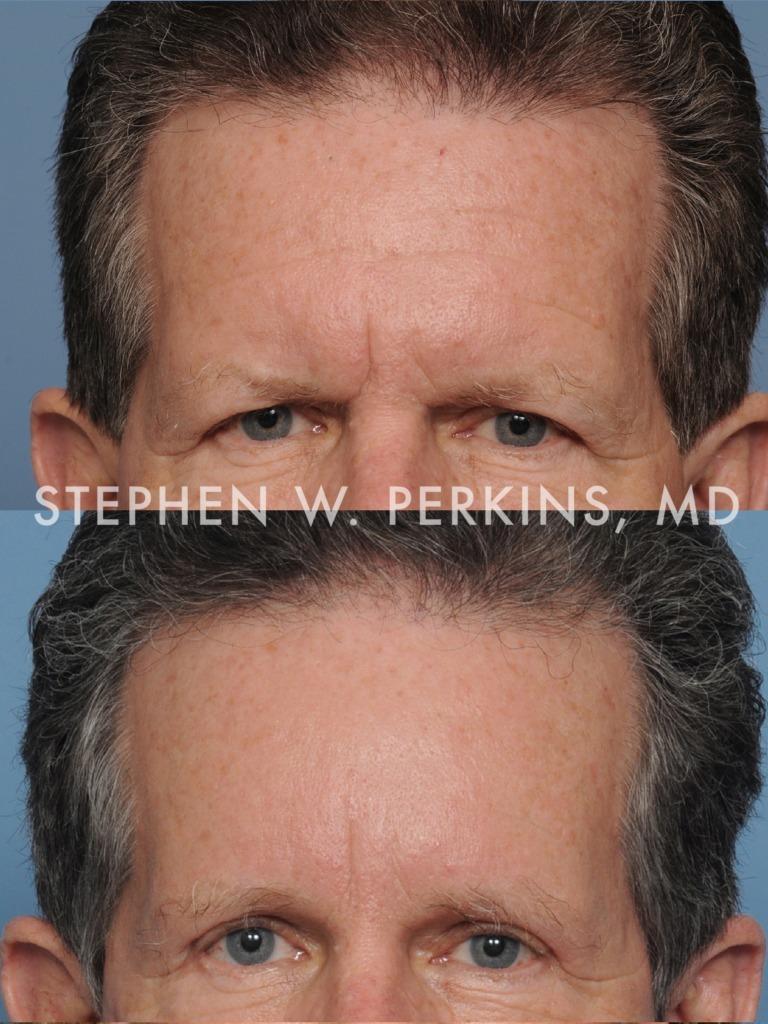 Indianapolis Plastic Surgeons | Dr. Stephen Perkins, MD 09b_EV