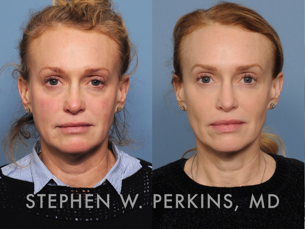 Indianapolis Plastic Surgeons | Dr. Stephen Perkins, MD 10