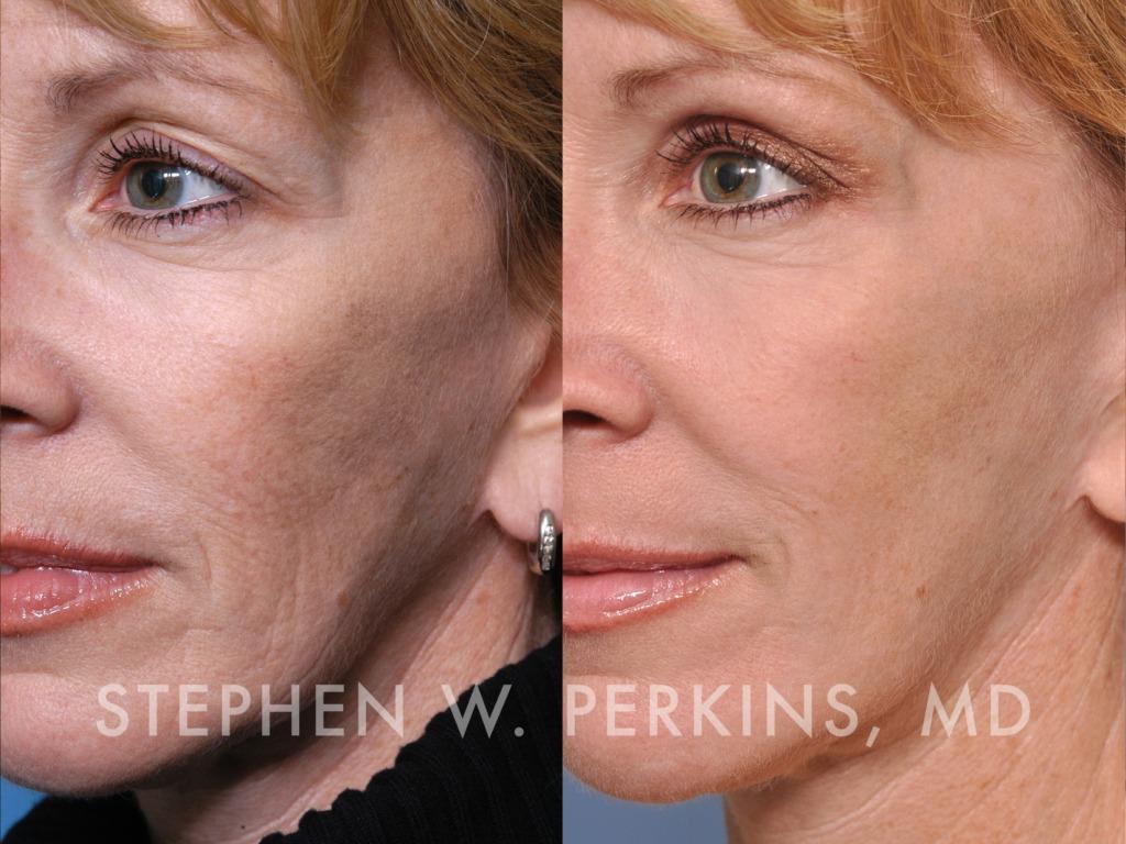 Indianapolis Plastic Surgeons | Dr. Stephen Perkins, MD 10
