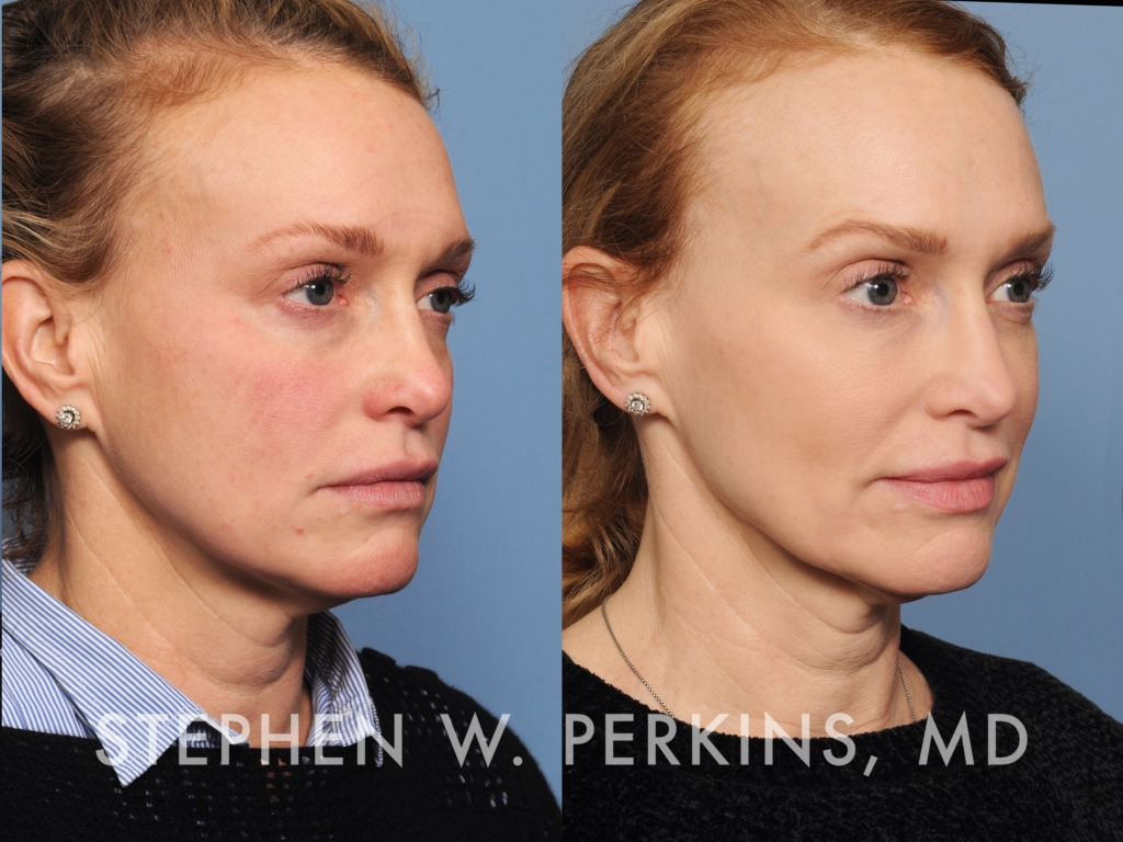 Indianapolis Plastic Surgeons | Dr. Stephen Perkins, MD 11