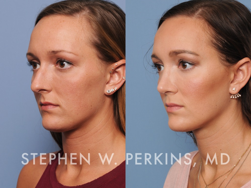 Indianapolis Plastic Surgeons | Dr. Stephen Perkins, MD 12