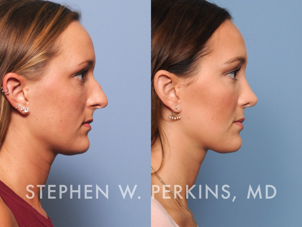 Indianapolis Plastic Surgeons | Dr. Stephen Perkins, MD 13