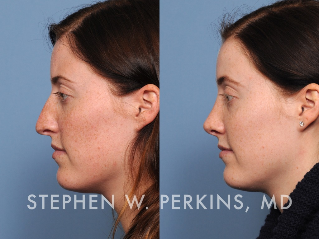 Indianapolis Plastic Surgeons | Dr. Stephen Perkins, MD 15