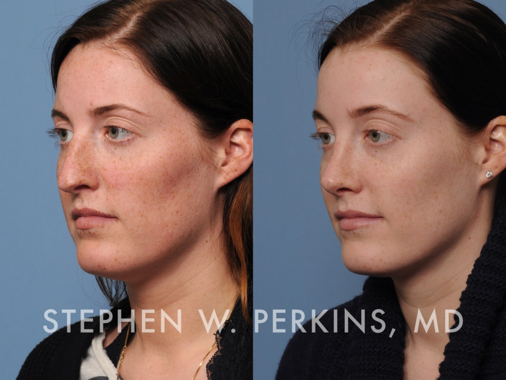 Indianapolis Plastic Surgeons | Dr. Stephen Perkins, MD 16