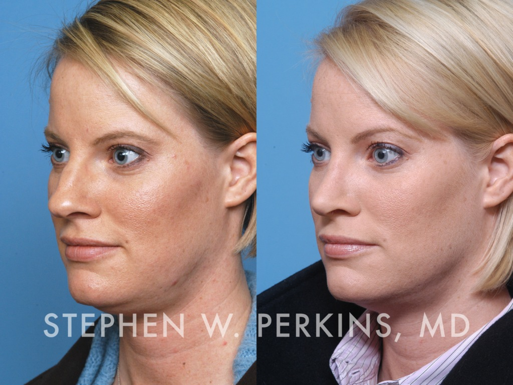 Indianapolis Plastic Surgeons | Dr. Stephen Perkins, MD 17