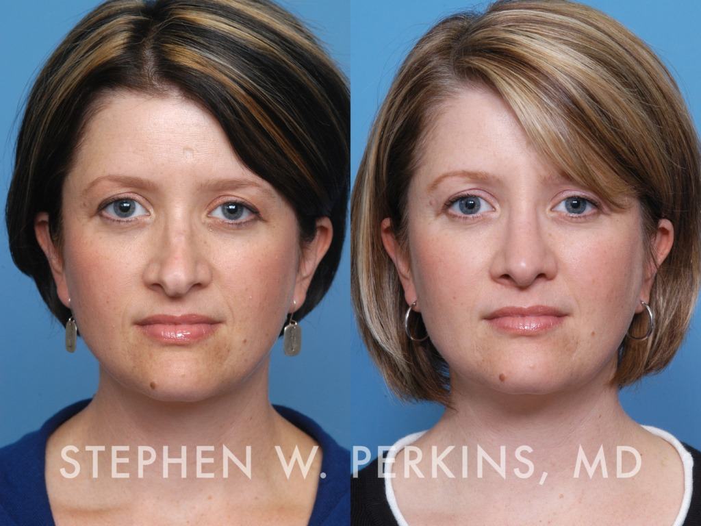 Indianapolis Plastic Surgeons | Dr. Stephen Perkins, MD 18