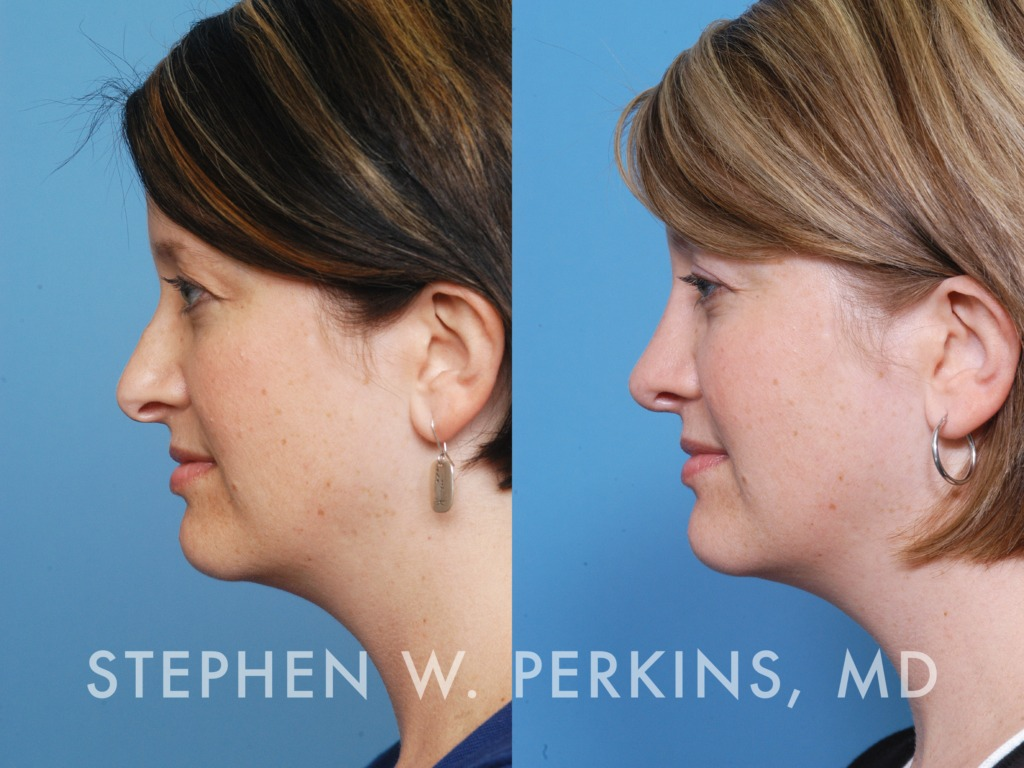 Indianapolis Plastic Surgeons | Dr. Stephen Perkins, MD 19