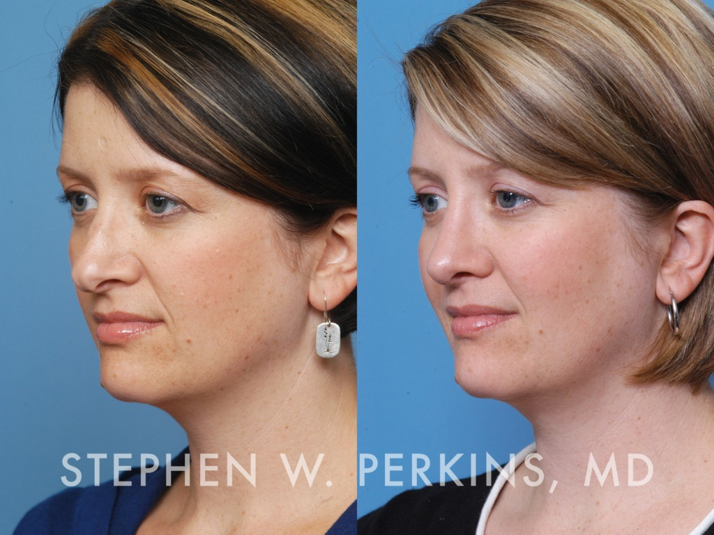 Indianapolis Plastic Surgeons | Dr. Stephen Perkins, MD 20