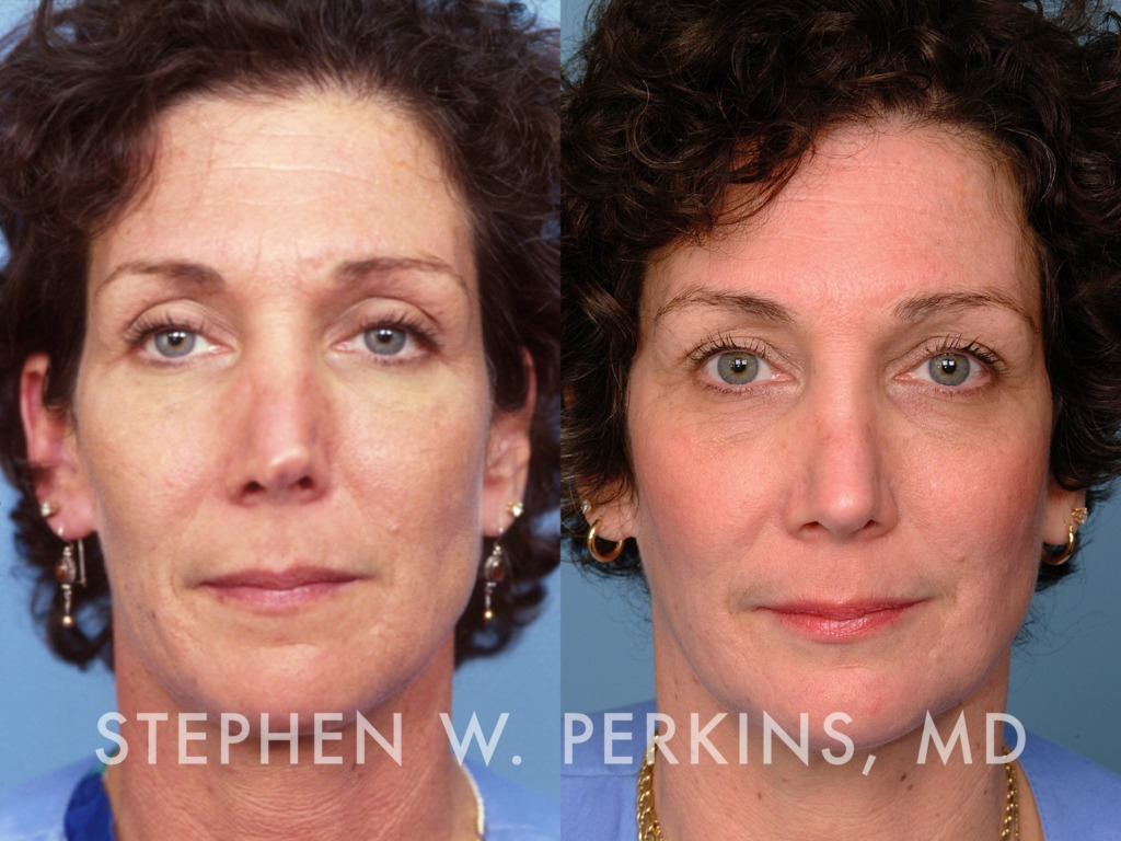Indianapolis Plastic Surgeons | Dr. Stephen Perkins, MD 21