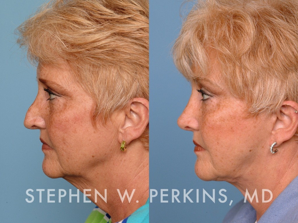 Indianapolis Plastic Surgeons | Dr. Stephen Perkins, MD 22