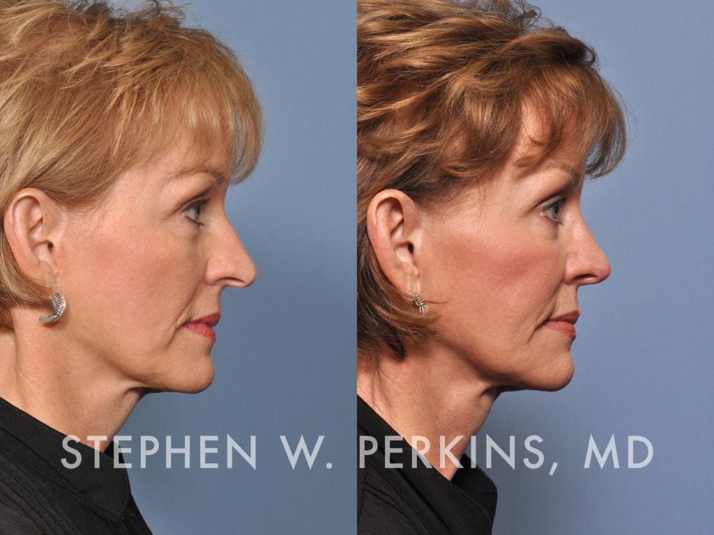 Indianapolis Plastic Surgeons | Dr. Stephen Perkins, MD 23