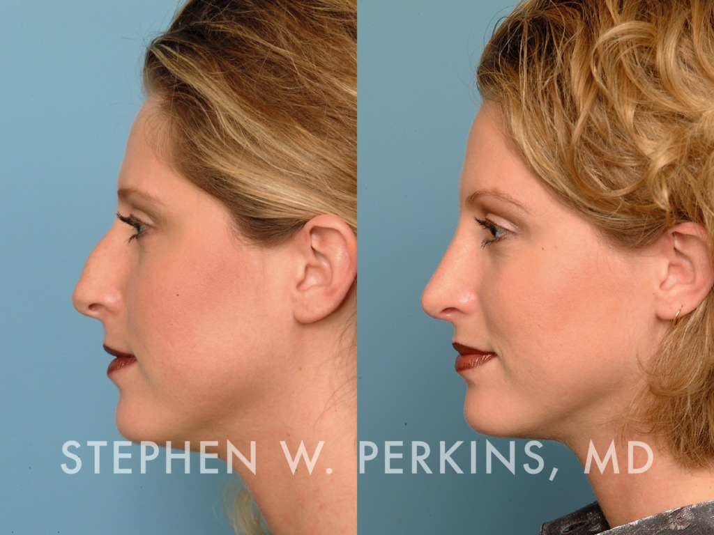 Indianapolis Plastic Surgeons | Dr. Stephen Perkins, MD 24