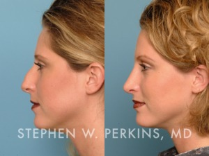 Indianapolis Plastic Surgeons | Dr. Stephen Perkins, MD 24