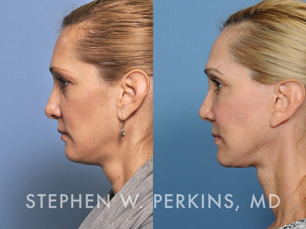 Indianapolis Plastic Surgeons | Dr. Stephen Perkins, MD 25