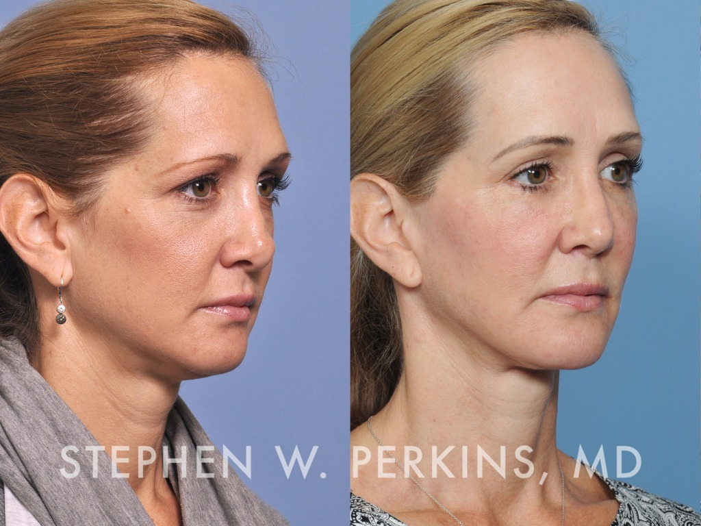 Indianapolis Plastic Surgeons | Dr. Stephen Perkins, MD 26
