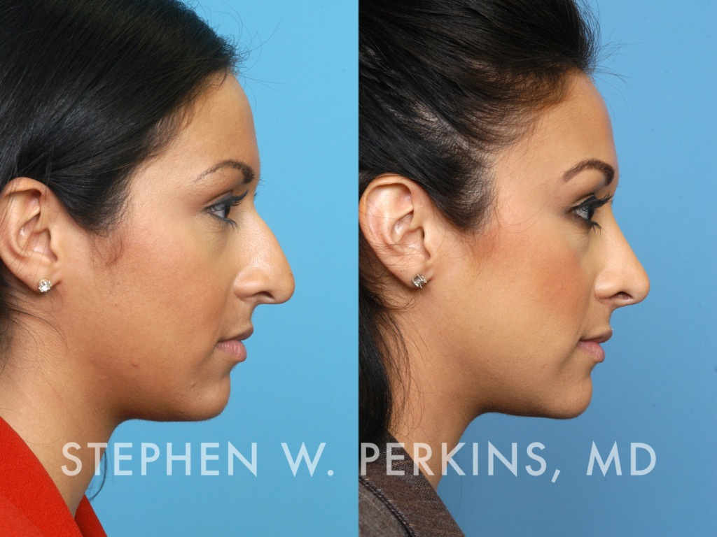Indianapolis Plastic Surgeons | Dr. Stephen Perkins, MD Michelle