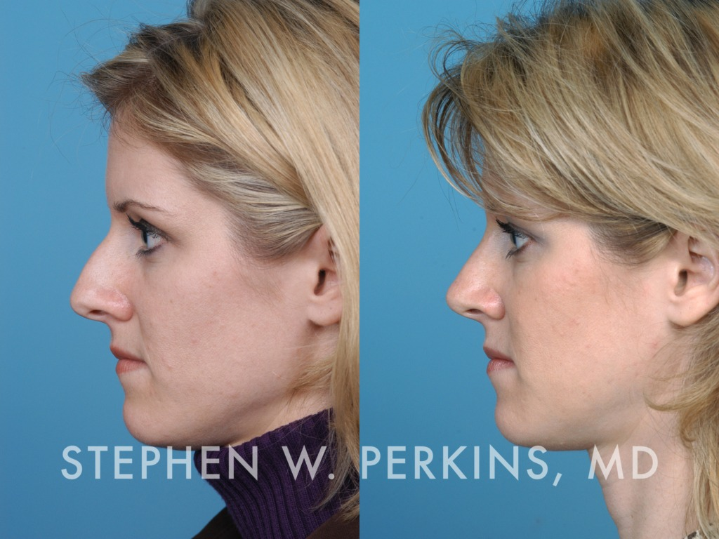 Indianapolis Plastic Surgeons | Dr. Stephen Perkins, MD 27