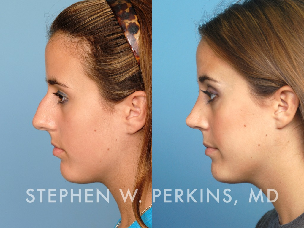 Indianapolis Plastic Surgeons | Dr. Stephen Perkins, MD 29