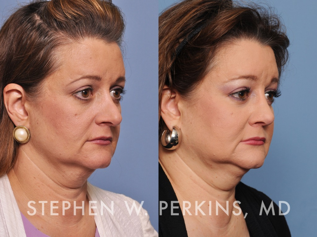 Indianapolis Plastic Surgeons | Dr. Stephen Perkins, MD 30