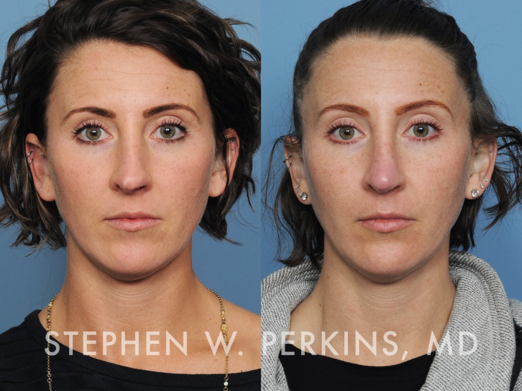 Indianapolis Plastic Surgeons | Dr. Stephen Perkins, MD 31