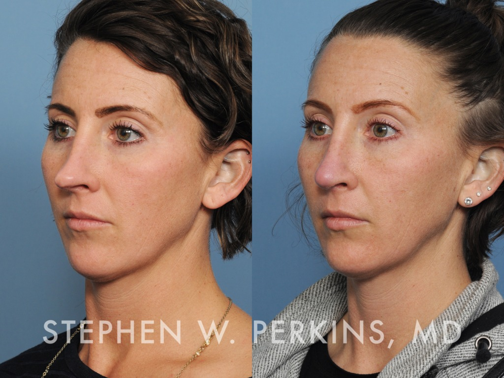Indianapolis Plastic Surgeons | Dr. Stephen Perkins, MD 32