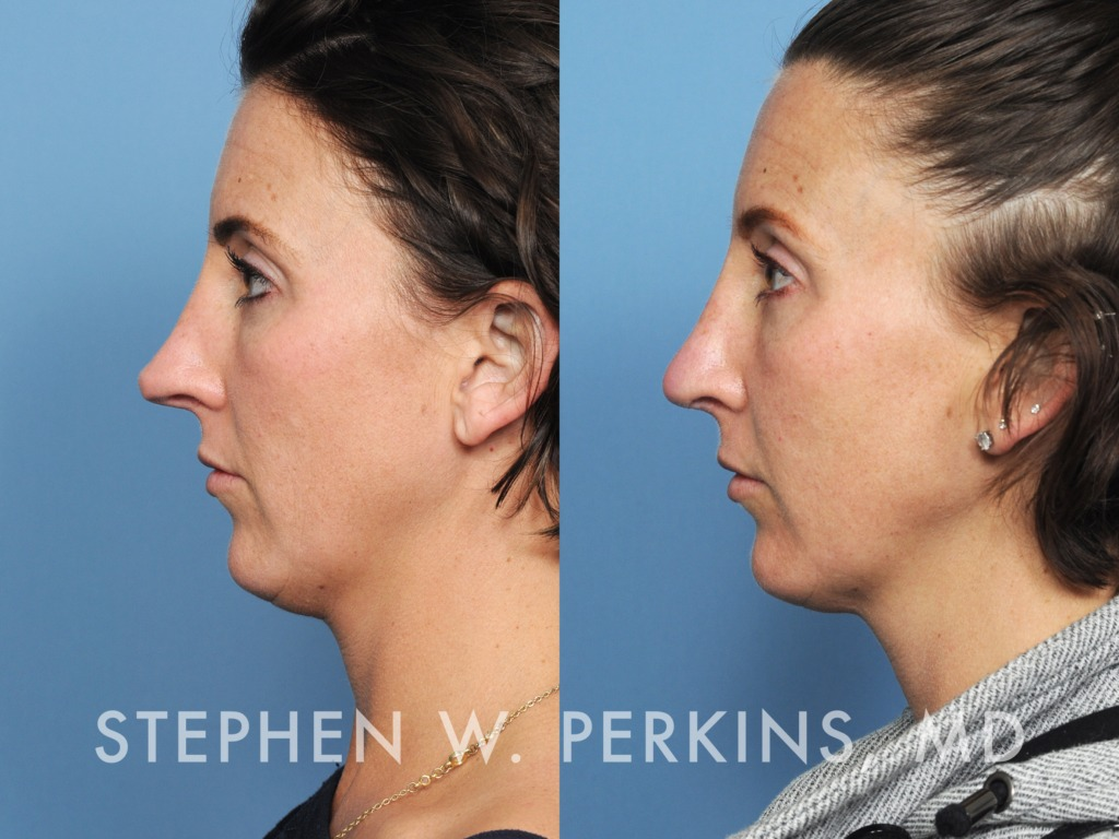 Indianapolis Plastic Surgeons | Dr. Stephen Perkins, MD 33