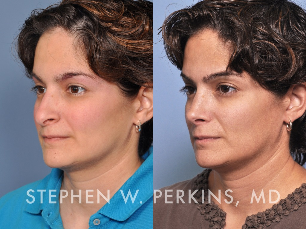 Indianapolis Plastic Surgeons | Dr. Stephen Perkins, MD 36