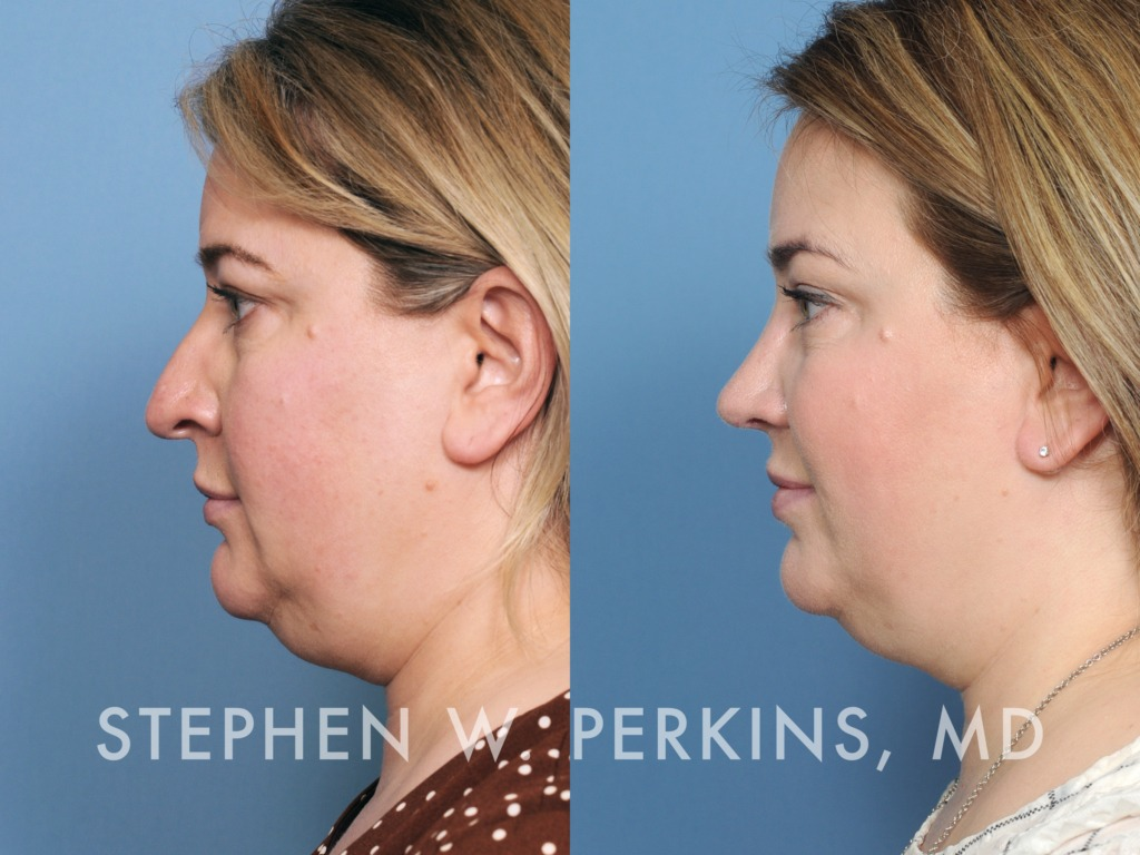 Indianapolis Plastic Surgeons | Dr. Stephen Perkins, MD 37