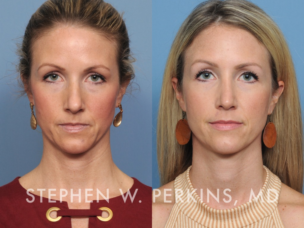 Indianapolis Plastic Surgeons | Dr. Stephen Perkins, MD 39