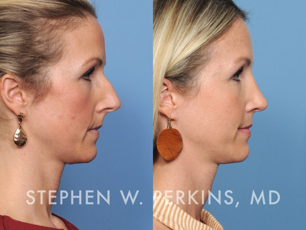 Indianapolis Plastic Surgeons | Dr. Stephen Perkins, MD 40