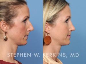 Indianapolis Plastic Surgeons | Dr. Stephen Perkins, MD 40