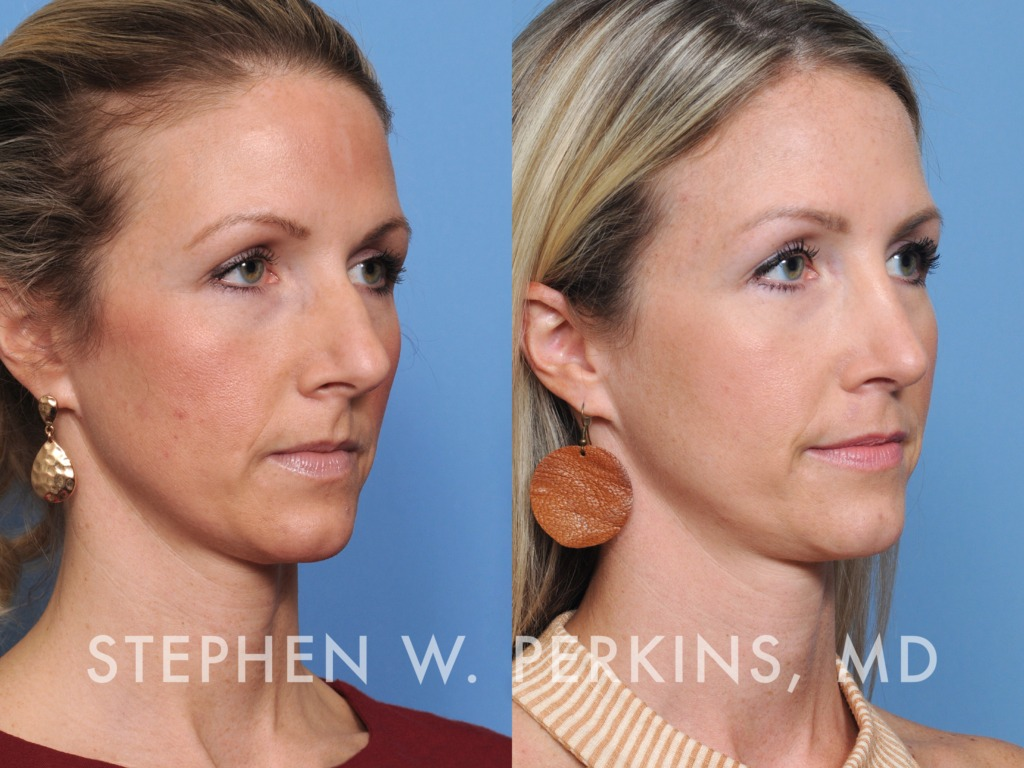 Indianapolis Plastic Surgeons | Dr. Stephen Perkins, MD 41