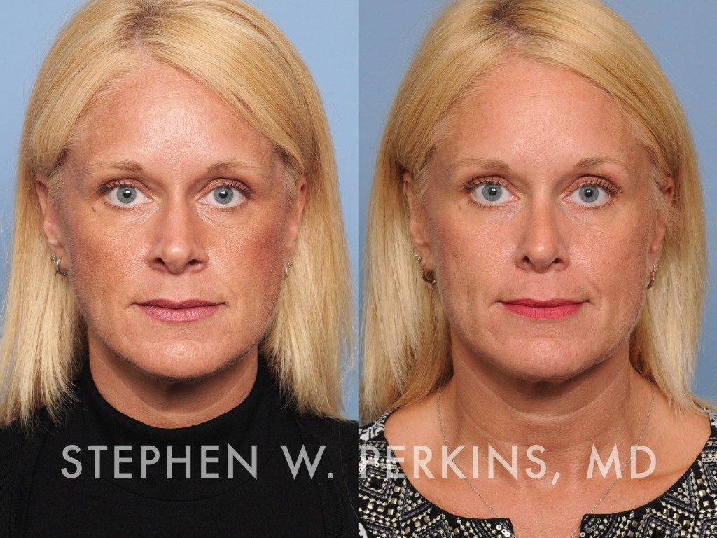 Indianapolis Plastic Surgeons | Dr. Stephen Perkins, MD 42