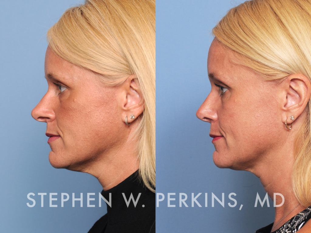 Indianapolis Plastic Surgeons | Dr. Stephen Perkins, MD 43