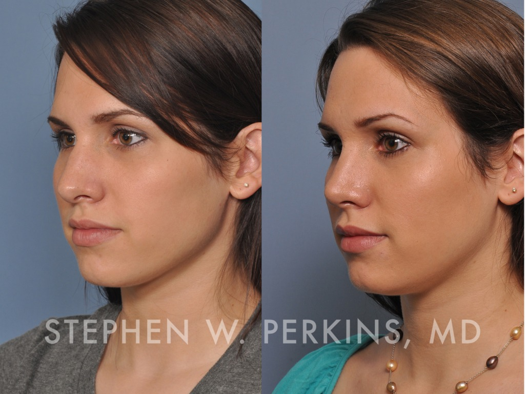 Indianapolis Plastic Surgeons | Dr. Stephen Perkins, MD Christine