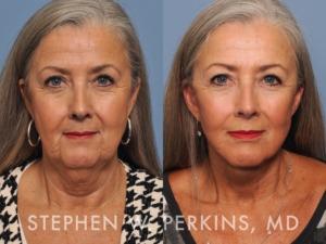 Indianapolis Plastic Surgeons | Dr. Stephen Perkins, MD PremierFL