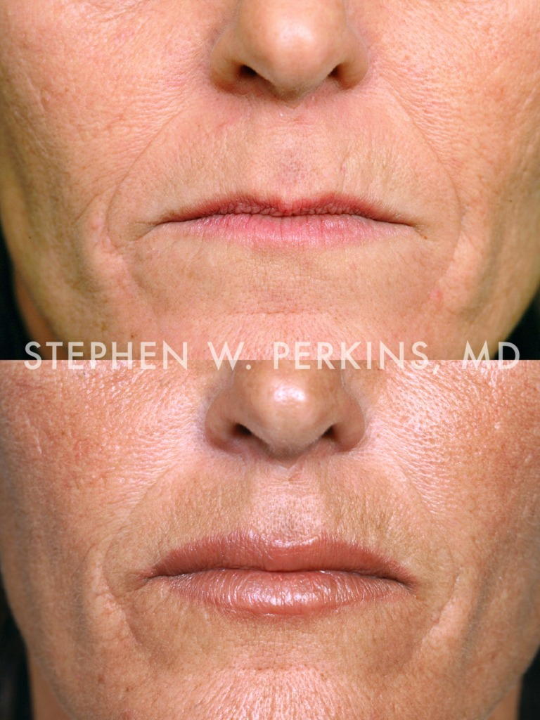 Indianapolis Plastic Surgeons | Dr. Stephen Perkins, MD 01MB