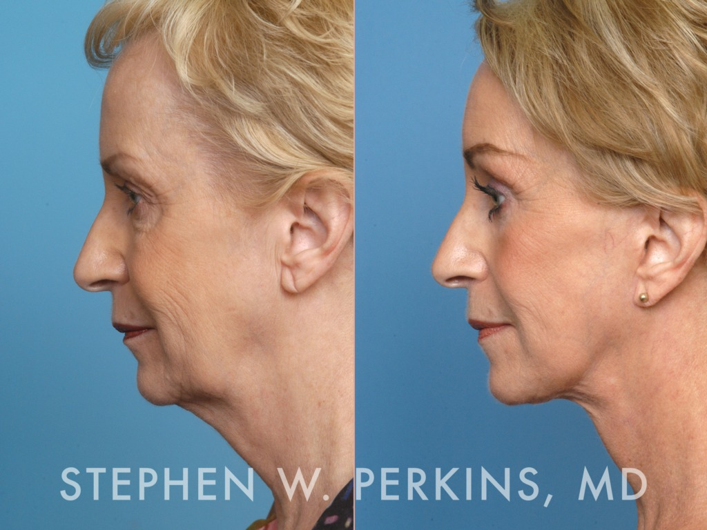 Indianapolis Plastic Surgeons | Dr. Stephen Perkins, MD 01MN