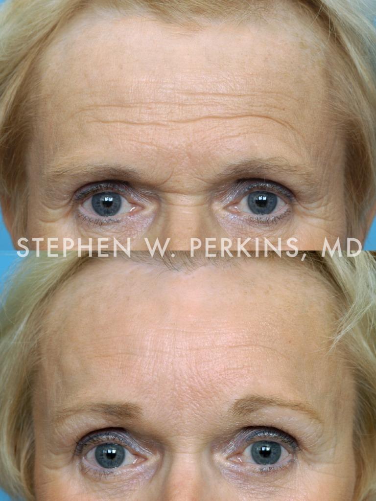 Indianapolis Plastic Surgeons | Dr. Stephen Perkins, MD 02BH