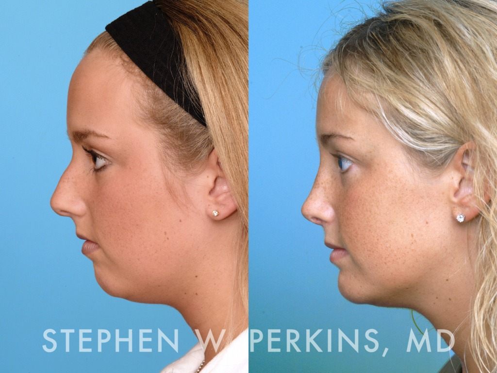 Indianapolis Plastic Surgeons | Dr. Stephen Perkins, MD 02BS