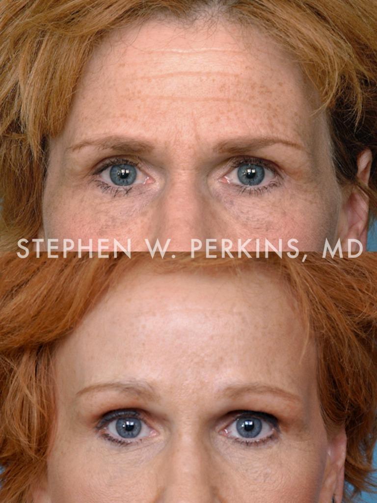 Indianapolis Plastic Surgeons | Dr. Stephen Perkins, MD 03RJ