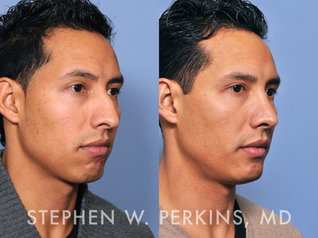 Indianapolis Plastic Surgeons | Dr. Stephen Perkins, MD 05DG