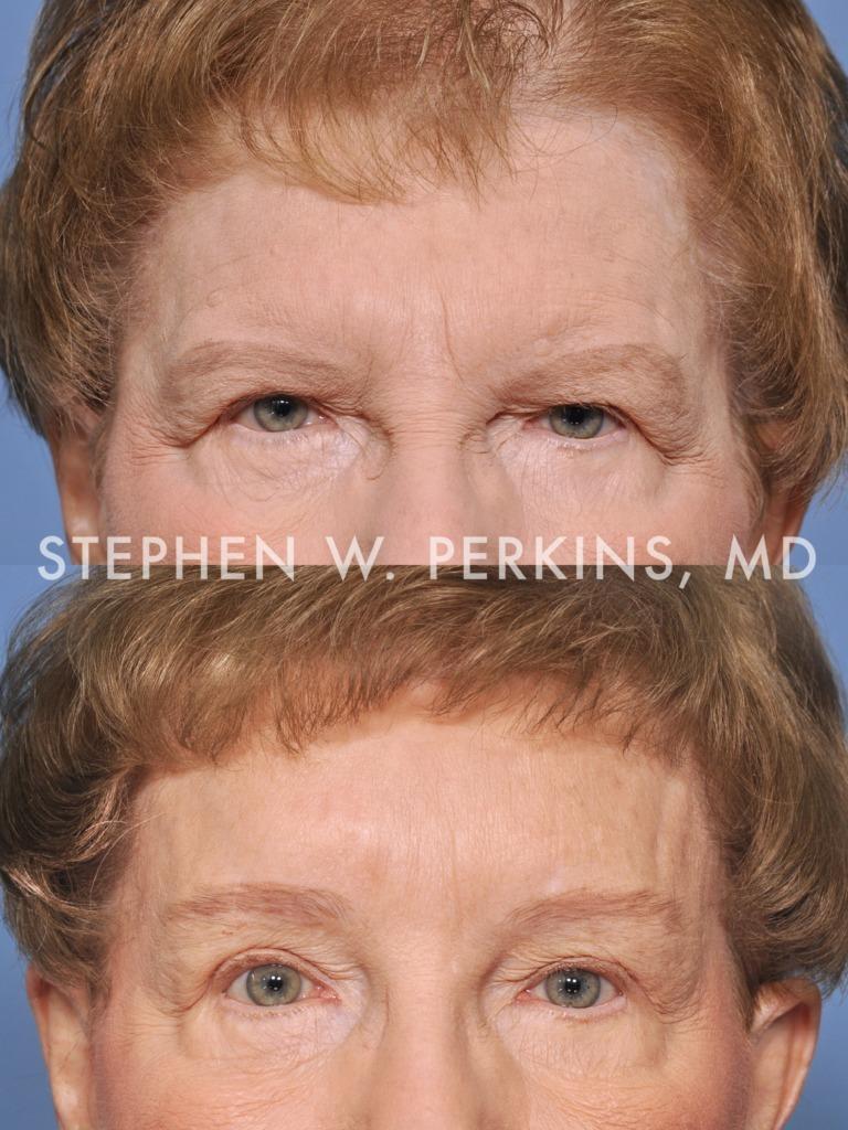 Indianapolis Plastic Surgeons | Dr. Stephen Perkins, MD 05PR