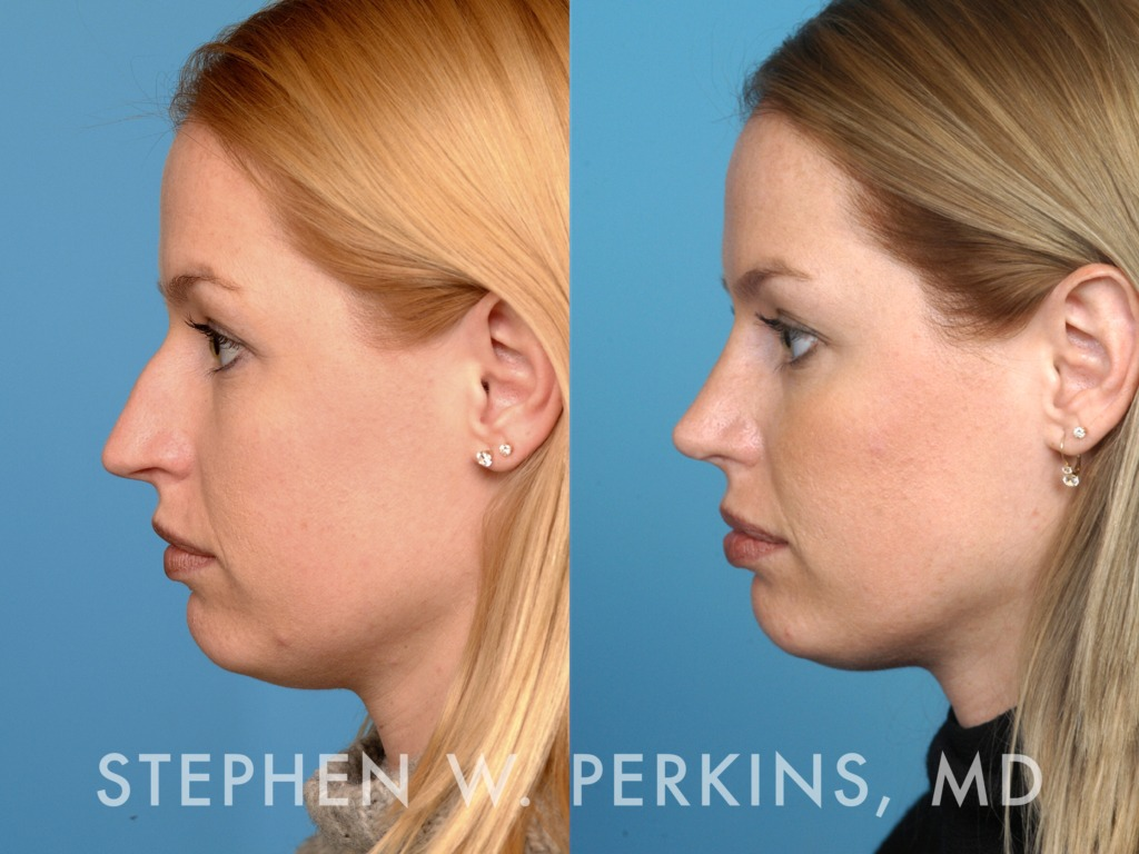 Indianapolis Plastic Surgeons | Dr. Stephen Perkins, MD 06KG