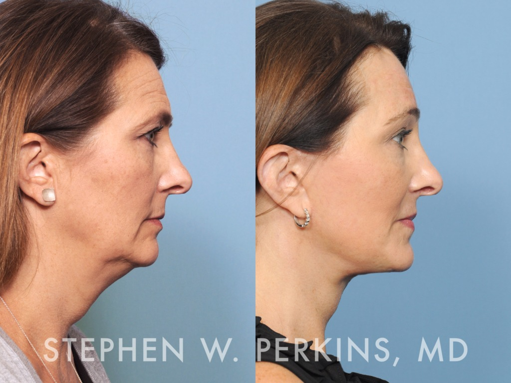 Indianapolis Plastic Surgeons | Dr. Stephen Perkins, MD 06TB